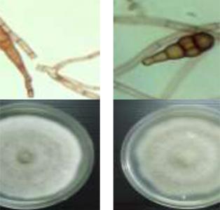 โครงการวิจัยและพัฒนาปัจจัยการผลิตชีวภาพเพื่อทดแทนสารเคมีเกษตรบนพื้นที่สูง เชื้อแอคติโเอนโดไฟท์จากสมุนไพรไทยและควบคุมโรคผักในระยะกล้า
